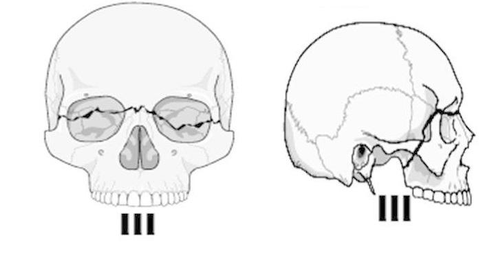 верхняя челюсть перелом ле фор 3