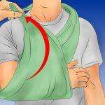 Перелом голени: со смещением и без, открытый и закрытый