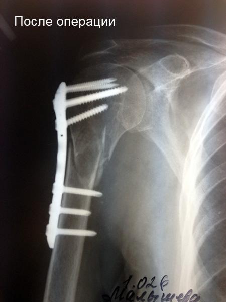 Перелом шейки плеча (хирургической): симптомы, лечение