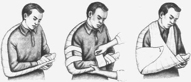 фиксация при переломе руки