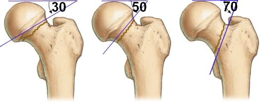 классификация переломов бедренной шейки