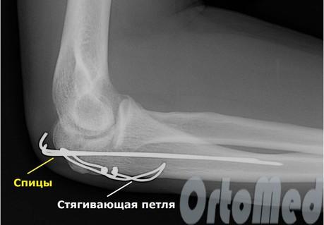 лечение перелома локтя