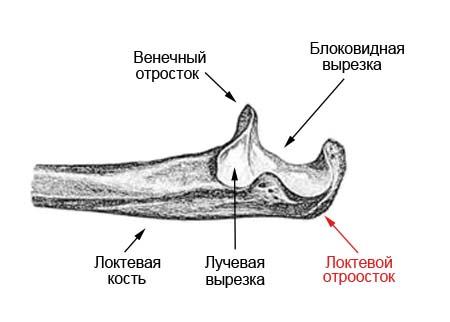 Перелом локтевого отростка со смещением и без: лечение, реабилитация