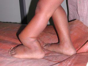 ложный сустав в голени