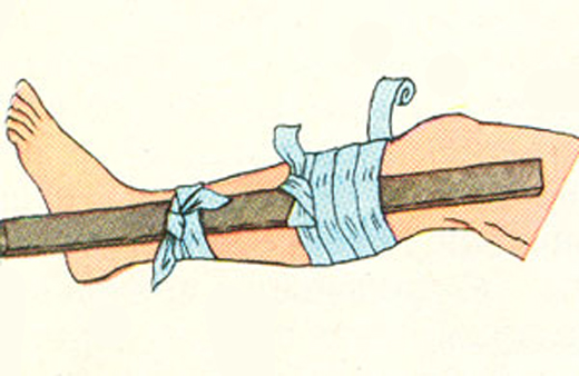 оказание первой помощи при закрытом переломе ноги - наложение шины