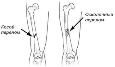оскольчатый перелом бедренной кости
