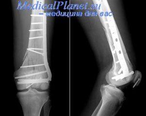 остеосинтез коленной чашечки