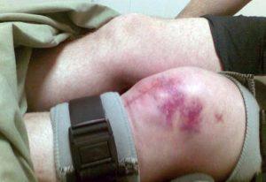 отек и гематома колена при его переломе