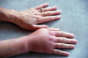 отек при переломе кисти руки