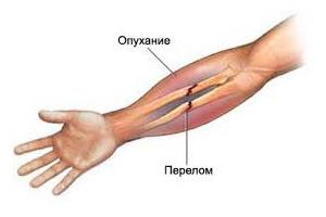 отек при переломе кости