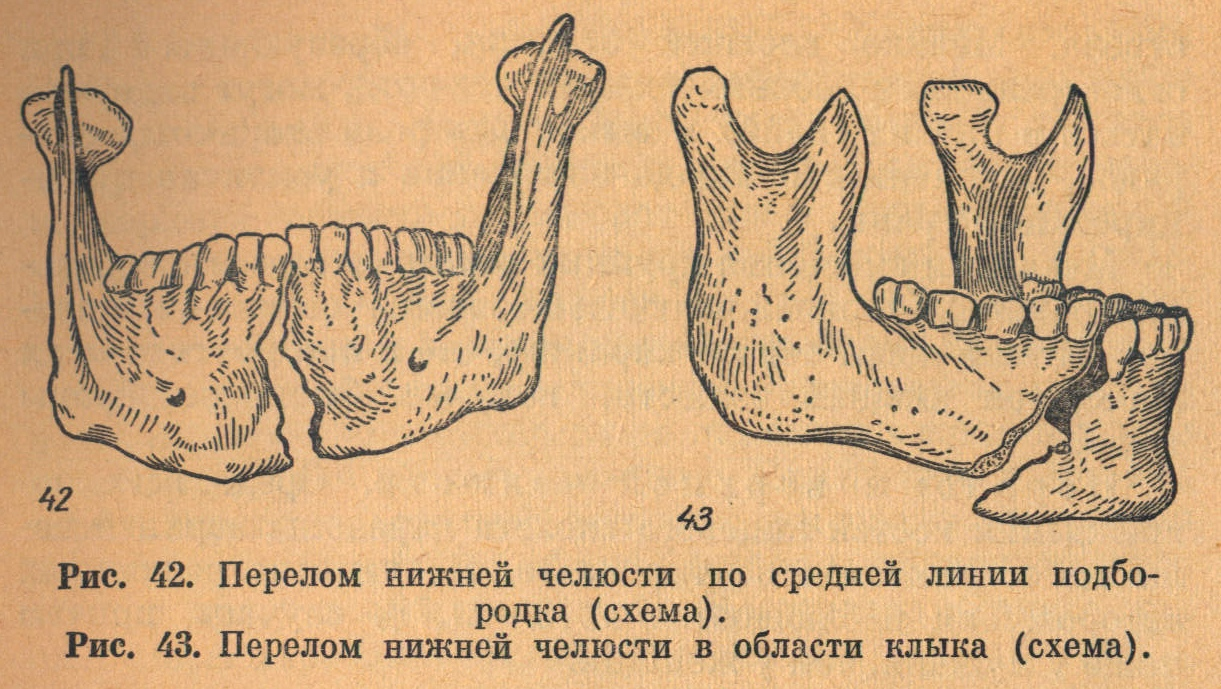 перееломы нижней челюсти