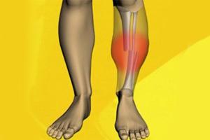 Перелом берцовой кости: сколько ходить в гипсе