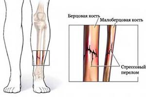перелом берцовых костей