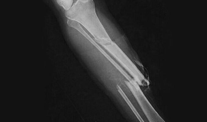 перелом голени на рентгене