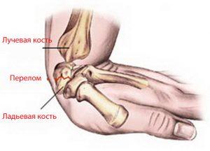 перелом ладьевидной кости кисти