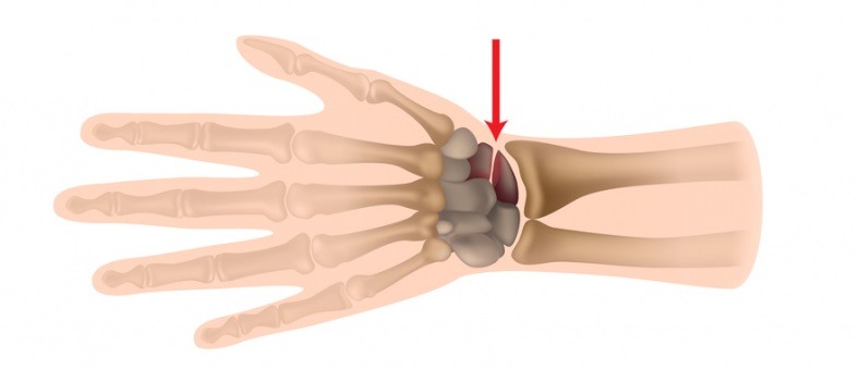 перелом ладьевидной кости левой руки