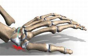 перелом ладьевидной кости запястья