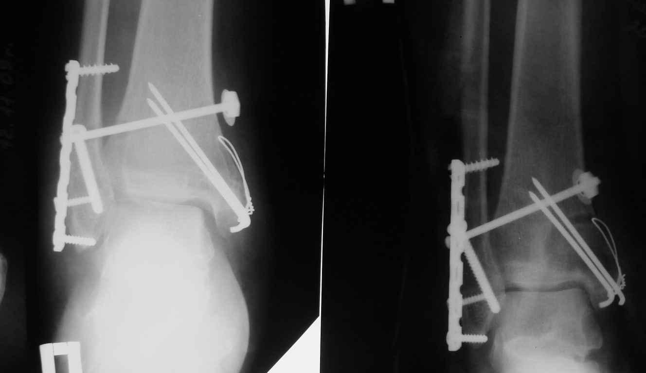 перелом лодыжки операция с пластиной