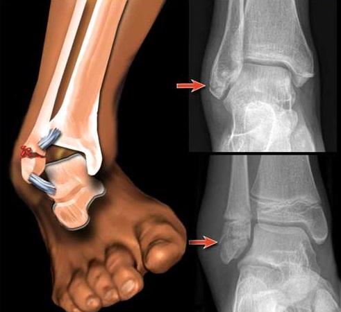 Перелом лодыжки: когда можно наступать на ногу