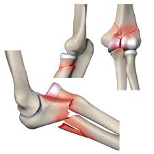 Переломы локтевого сустава у детей фото гопартроз коленного сустава
