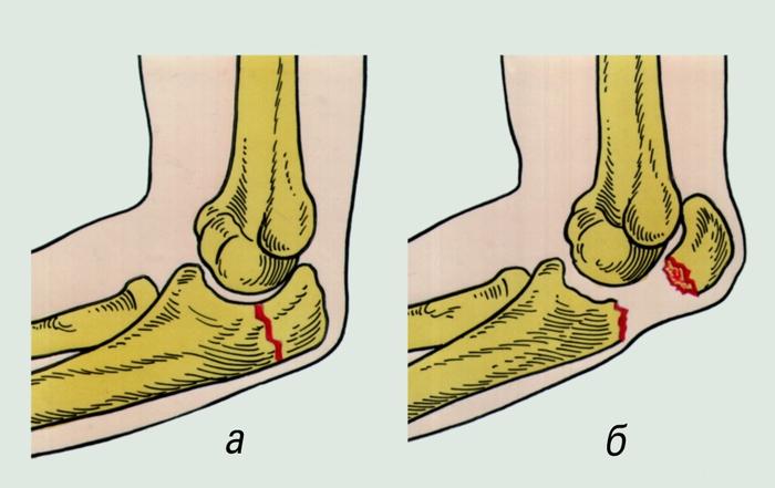 перелом локтевой кости со смещением и без него