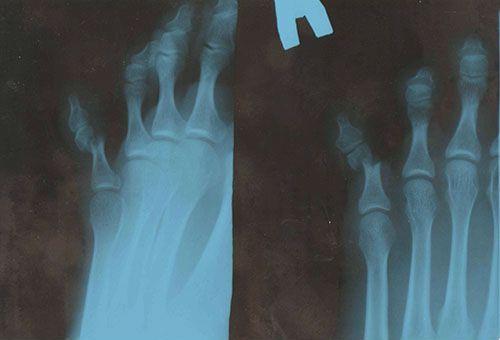перелом мизинца на ноге на рентгене