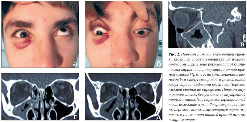перелом нижней стенки глазницы