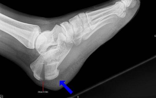 перелом пяточной кости на рентгене