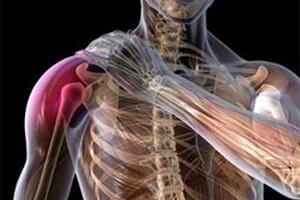 перелом верхней части тела