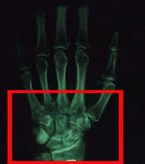 перелом запястья на рентгене