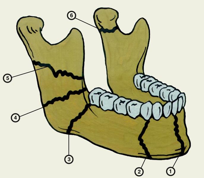 переломы нижней челюсти в зависимости от места повреждения