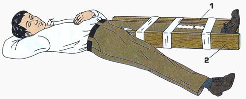 первая помощь при переломе колена