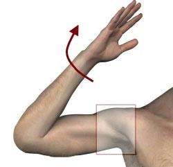 подвывих плеча