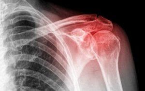 подвывих сустава плеча