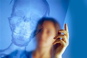последствия перелома черепа