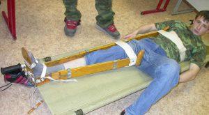 пример иммобилизации с помощью шини при переломе бедра