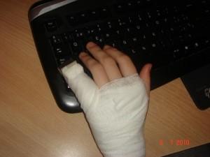 признаки перелома мизинца на руке