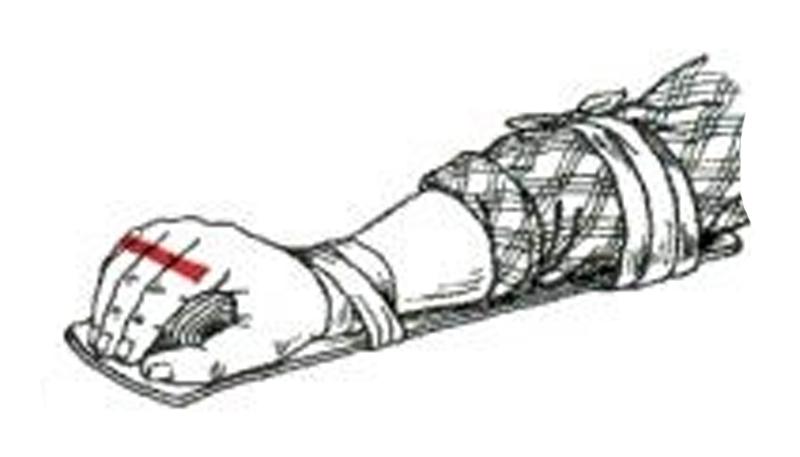 шина при переломе кисти