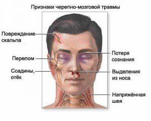 симптомы перелома черепа