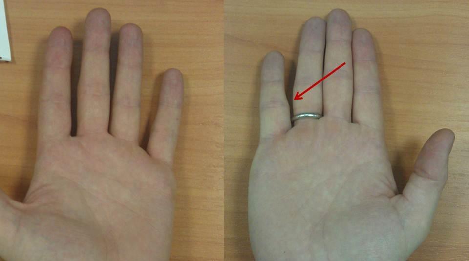 Перелом мизинца на руке: симптомы, сколько заживает