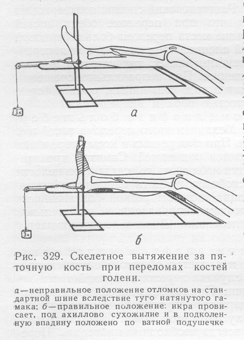 скелетное вытяжение при переломе лодыжки