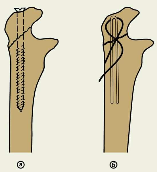 скрепление кости с помощью винтов и проволоки
