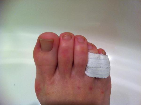 сломался мизинец на ноге