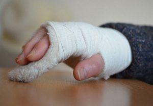 сломана рука