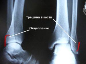 трещина кости