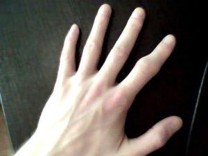 трещина в кости руки