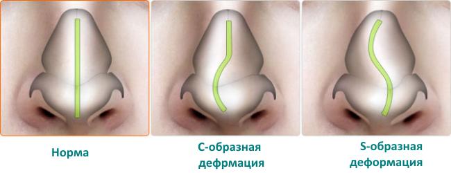 виды искривлений носовой перегородки
