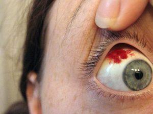кровоизлияние в области роговицы глаза