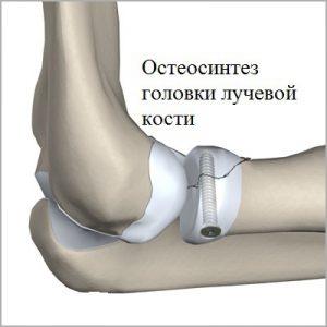остеосинтез головки лучевой кости при переломе