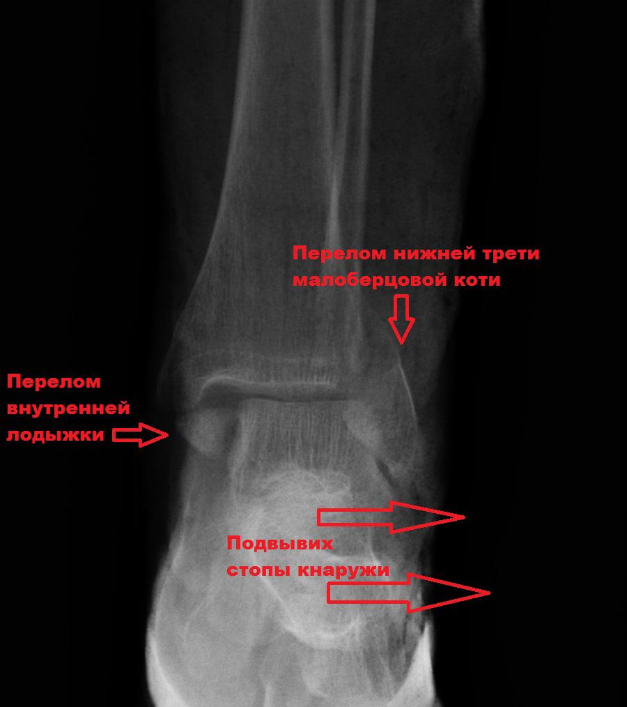 перелом голеностопного сустава на рентгене